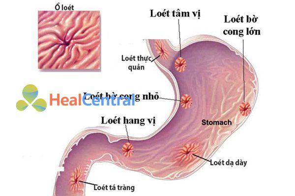Bệnh loét dạ dày tá tràng